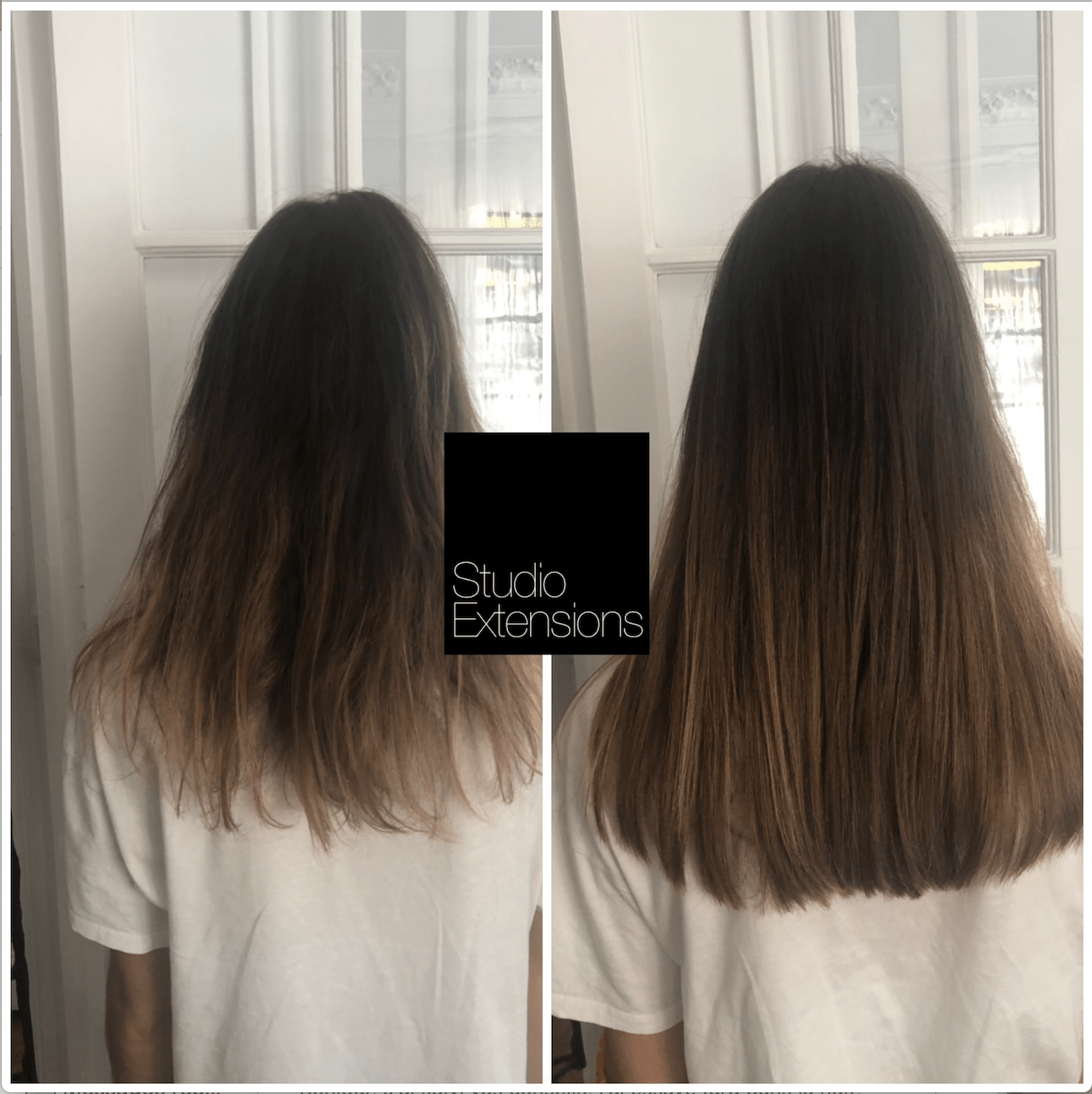 50 extensions ultrason Pose volume